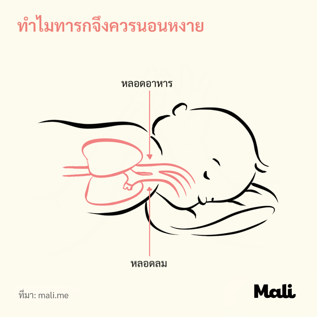 Why babies should sleep on their back and how to train them to do so by Mali_th
