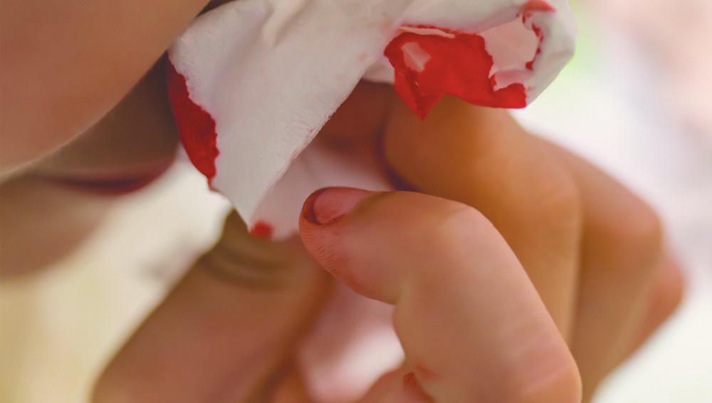 ท้องแล้วเลือดกำเดาไหลบ่อย จะหยุดอาการนี้ได้อย่างไร?