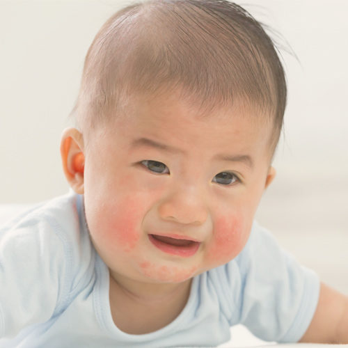 What if my child is cow milk intolerant?